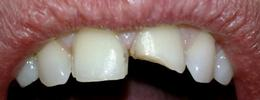 Broken-Front-Tooth-Before-Image